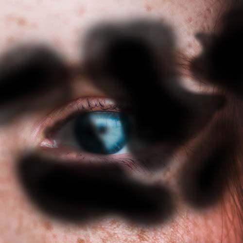 Black Blurry Blobs Over Closeup Of Human Eye