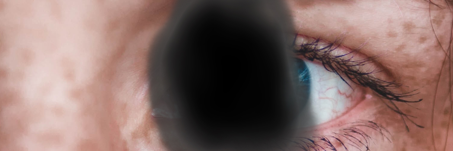 Black Blurry Dot Over Image Of Close Up Of Human Eye